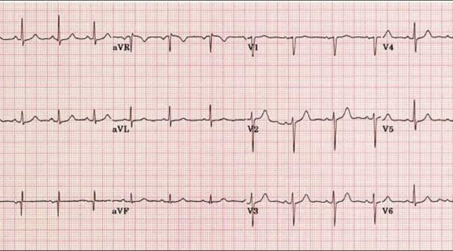 EKG nedir, EKG kağıdı nasıl okunur?